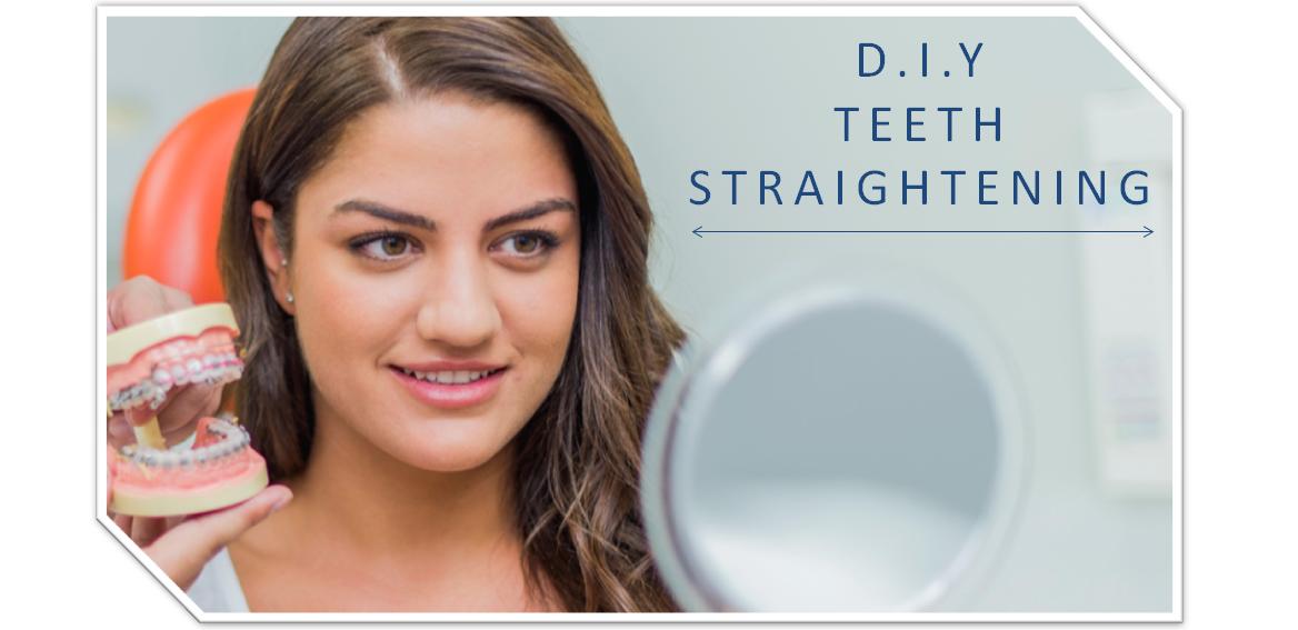 DIY Teeth Straightening