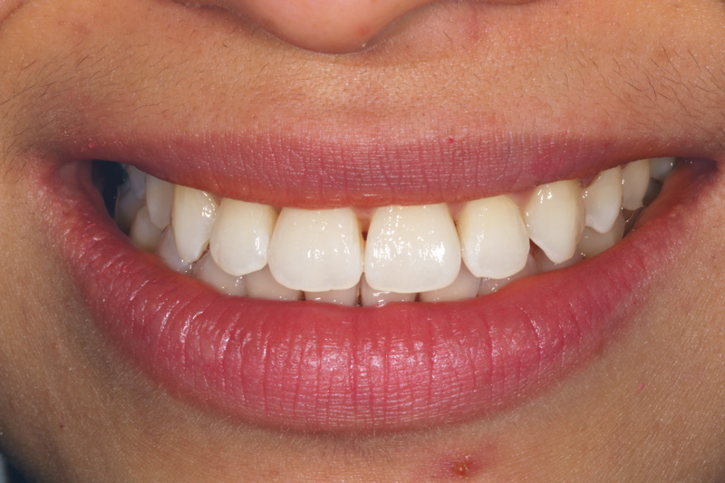Underbite adjusted with Adult Braces - After