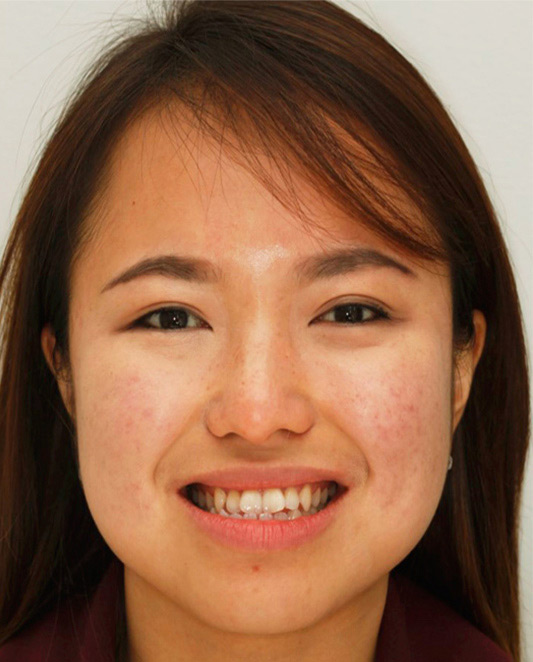 Underbite adjusted with Adult Braces-Before-profile