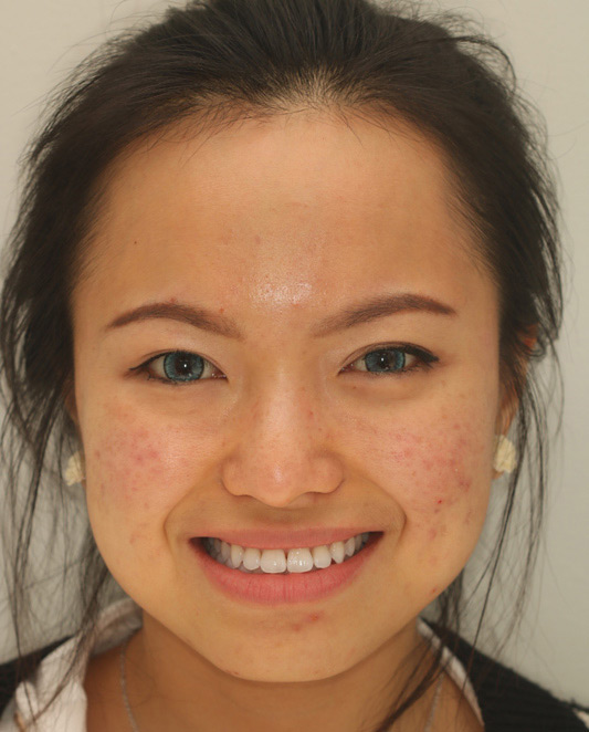 Underbite adjusted with Adult Braces-after-profile