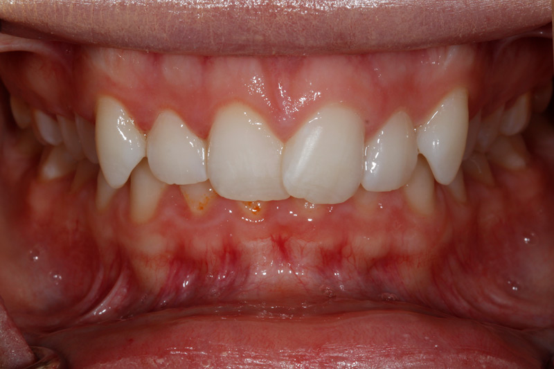 Adult Braces before-closeup