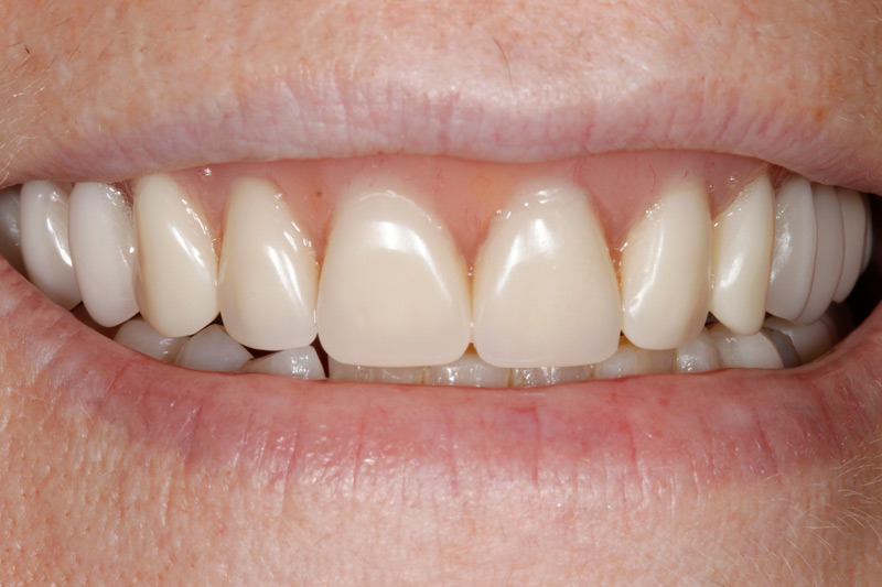 Damaged Teeth replaced with Dentures-closeup-after