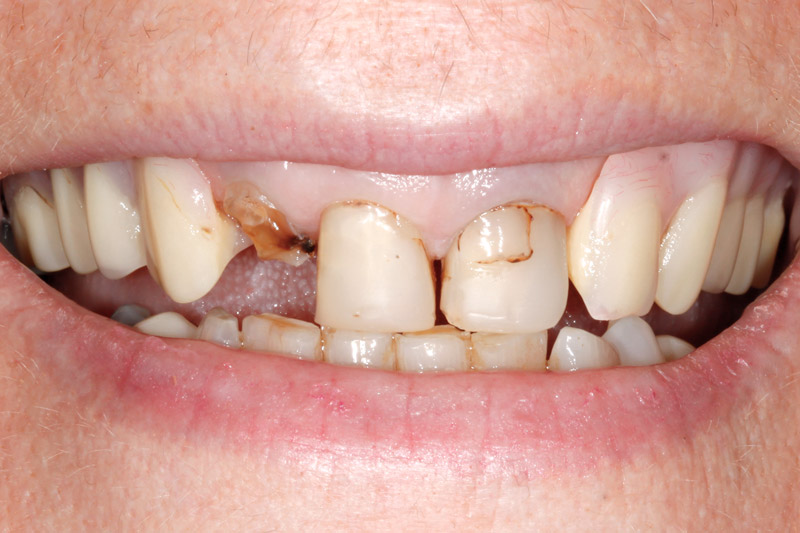 Damaged Teeth replaced with Dentures-closeup-before
