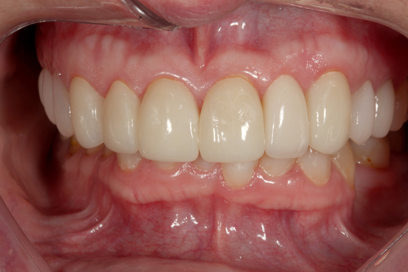 TMJ resolved with Crowns & Bridges closeup-after