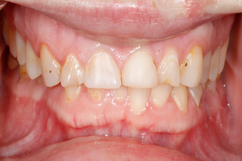 TMJ resolved with Crowns & Bridges closeup-before